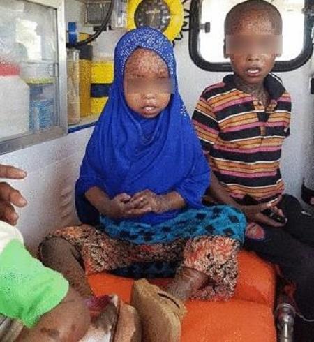 Alert! Panic As Children Contract Rare Skin Disease In Kenyan